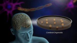 ابتكار مخ اصطناعي ينمو في المختبر لعلاج الفصام والزهايمر