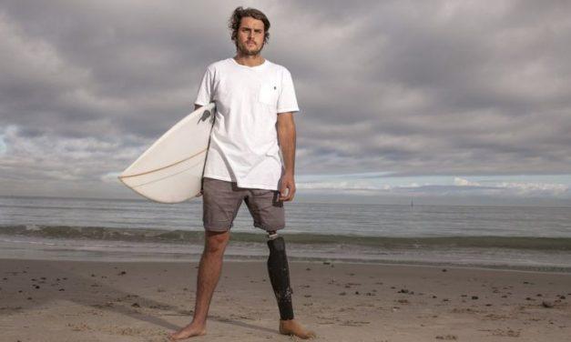 أسترالي يحتفظ بسن قرش أبيض التهم ساقه أثناء ركوب الأمواج